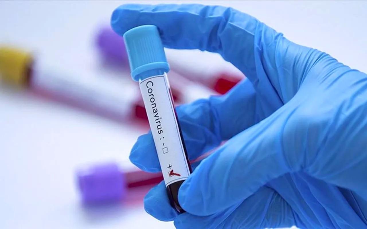 Covid: 27 contaminations, 301 décès